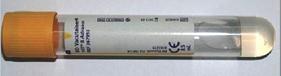 03黃頭管