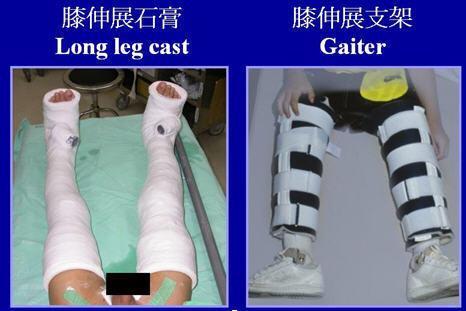 膝伸展石膏及支架