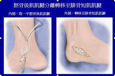 後脛肌腱轉位術