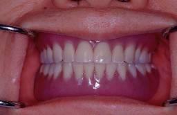 口內裝上假牙